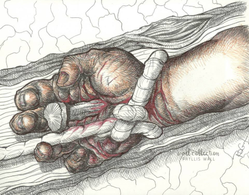 Nail Scarred Hande